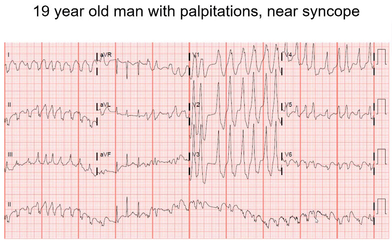 Fast and wide, not consistently. Look at lead 2, QRS is wide and different. Very pronounced in the precordial leads where the QRS has different degress of width. Fast, up to 300 beats per minute on some beats. This patient has pre-excitation, WPW. P…
