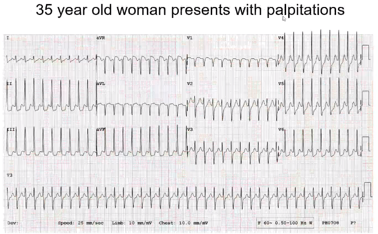 This rhythm is fast and narrow. All of the QRS are consistent. Do you see any p waves? …. There may be some retrograde p waves that are visualized in II or III. This patient is in SVT. This is typical AVNRT. There is also a pseudo R prim in V1. It l…