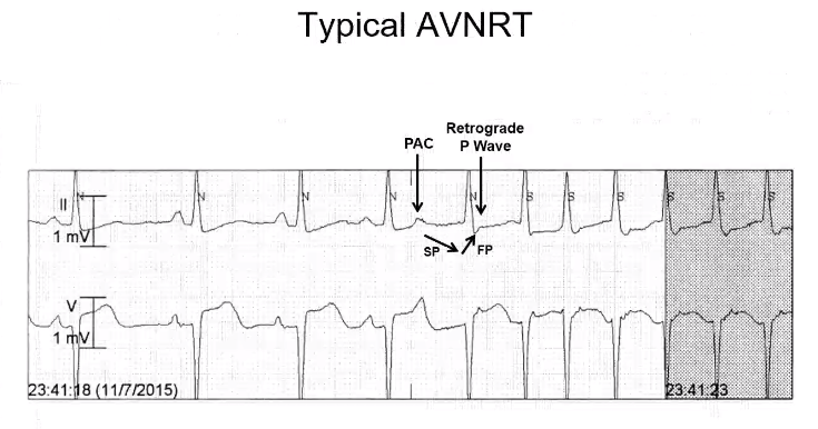 This is how AVNRT gets started. You have sinus rhythm with upright p waves. The T wave deforms because it is acutally a PAC. This conducts slowly down the slow pathway with a long PR. In the time that it takes for the slow pathway to conduct, the fa…