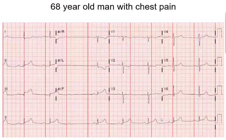 Sinus rhythm. Start in the rhythm strip. PR is long, gets longer, and suddenly there is a p wave without a QRS. After the dropped beat we see the next PR is back to normal, and progressively lengthens. Mobitz type I. Inferiorly you can see a STEMI.