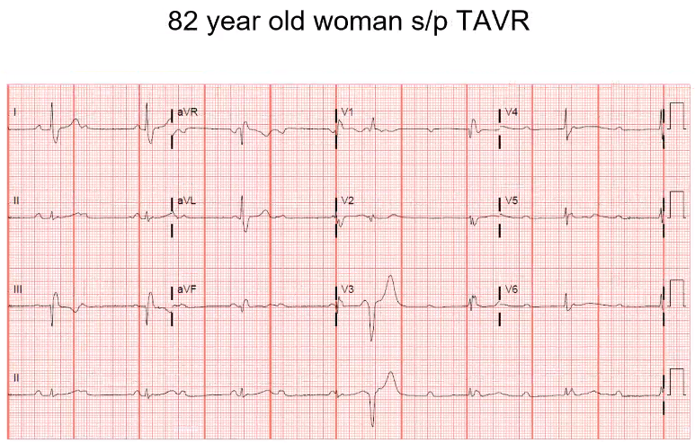 In a case like this, you want to spend a lot of time on the rhythm strip. Is there a p wave in front of every QRS? Is there more P's than QRS's? There are more p's than QRS's. If you look at the first few beats in the rythm strip you would think it …