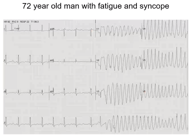 """Based on this EKG, what do you think may be some electrolyte abnormalities? Sinus, p wave before all QRS. But the QTc is prolonged. P wave is starting at downslope of the U wave. You can see the """"lumpy, bumpy"""" biphasic t wave into u wave. Hypocalcem…"""