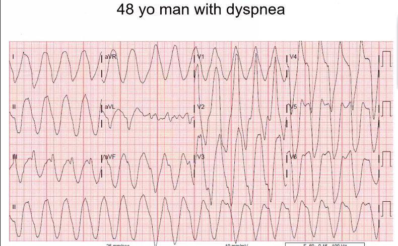 MWF dialysis patient. Skipped his dialysis session. What electrolyte abnormality do you think of? Wide, known dialysis patient, potassium was 8-9 on admission.