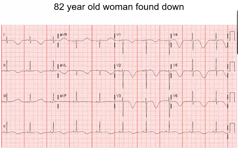 Sinus rhythm, p in front of each qrs. Both are normal. Notice that the QT is long. In the precordial leads the QT is long and there are T-wave inversions. In a patient found down, something that could explain this EKG is a CNS event (massive stroke)…