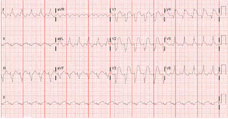 Here is what happens with an old LBB and a STEMI. You can still diagnose in the setting of a LBBB. Look at the old EKG. They may have a LBBB but the usually don't have this degree of ST change.