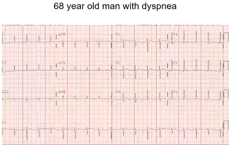 P wave in front of each QRS. Faster then 100, so sinus tachycardia. QT is on the short side. Money is on the rhythm strip. You can see electrical alternans. Heart is swinging in the pericardial effusion. As it swings away and towards you can see cha…
