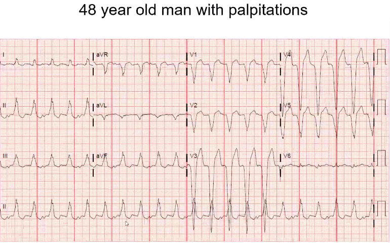This is wide and fast. You do not see p waves in front of every QRS. This is a patient with known heart failure, what does that increase his risk for? You have more V's that A's. It has to be a ventricular rhythm. This patient has slow Ventricular t…