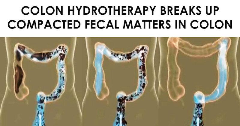 Colon hydrotherapy units - Toate modelurile pe primariacetateni.ro