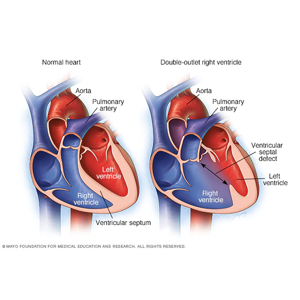 Other SV defects — Sisters by Heart