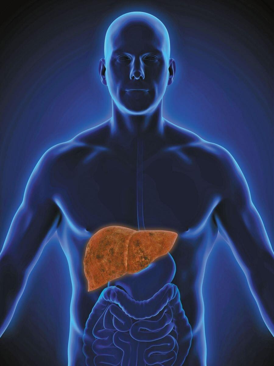 p6_NAFLD-liver_HH1908_gi656975240(1).jpg
